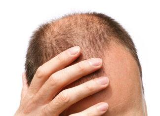 Jak uporać się z łysieniem